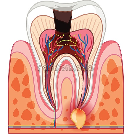 a human tooth decay and cavity